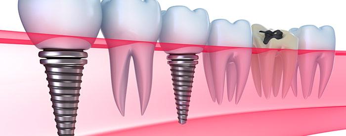 http://www.clinicaodontologicadepostgrados.com/wp-content/uploads/2017/03/implantologia.jpg