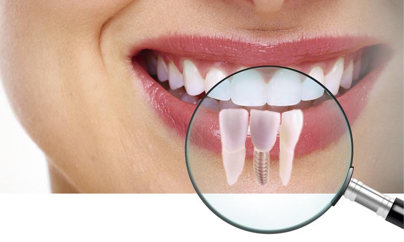 http://www.clinicaodontologicadepostgrados.com/wp-content/uploads/2017/04/implantes-1.jpg