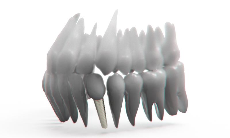http://www.clinicaodontologicadepostgrados.com/wp-content/uploads/2017/04/implantes-2.jpg