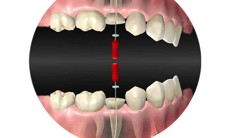 http://www.clinicaodontologicadepostgrados.com/wp-content/uploads/2017/04/implantes-3.jpg