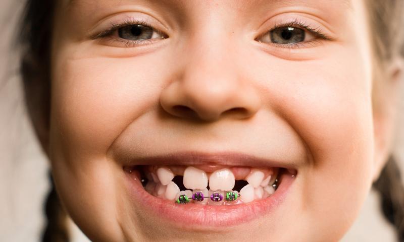http://www.clinicaodontologicadepostgrados.com/wp-content/uploads/2017/04/odontopediatria-2.jpg