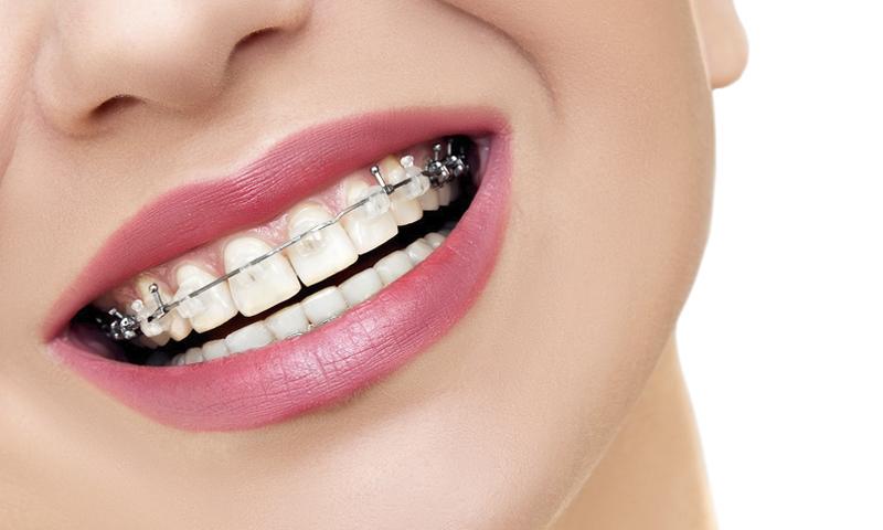 http://www.clinicaodontologicadepostgrados.com/wp-content/uploads/2017/04/ortodoncia-5.jpg