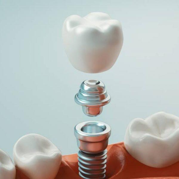 partes-implantes-dentales